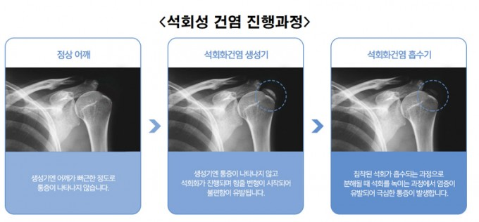 석회성-건염-진행과정.jpg